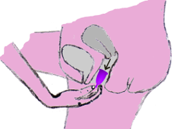 Image du retrait de la coupe menstruelle